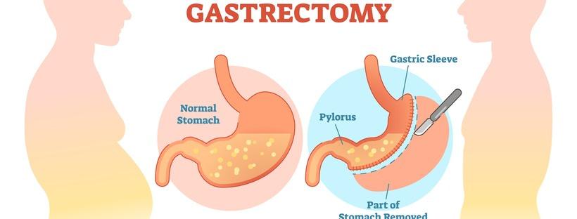Γαστρικό Μανίκι – Sleeve Gastrectomy