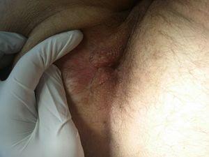Συρίγγιο Πρωκτού - Ένα χρόνο μετά την επέμβαση