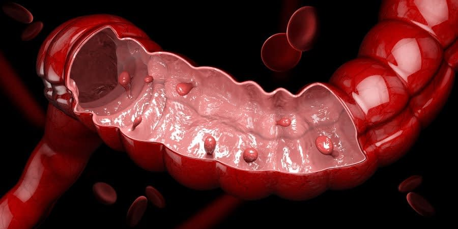 Πολύποδες Εντέρου: Συμπτώματα - Διάγνωση - Θεραπεία