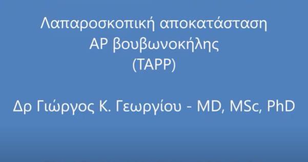 Λαπαροσκοπική αποκατάσταση αριστερής βουβωνοκήλης (TAPP)